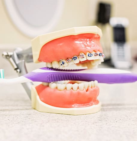 Orthodontics | Assiniboine Dental Group | St. James, Winnipeg Dentist